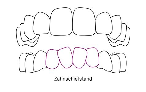 Zahnschiefstand