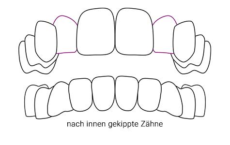 nach innen gekippte Zähne